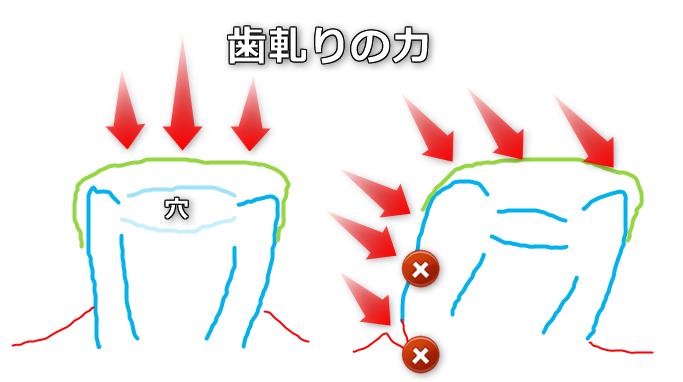歯軋り 横の力 歯茎 細菌