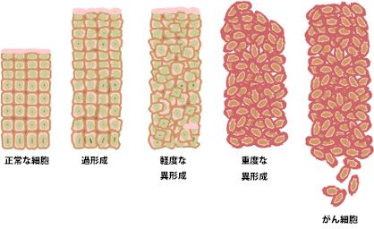 ガン転移ステージⅣという言葉への葛藤 闘病記01