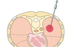 CT検査で肺のガンが小さく薄くなった!? 闘病記04