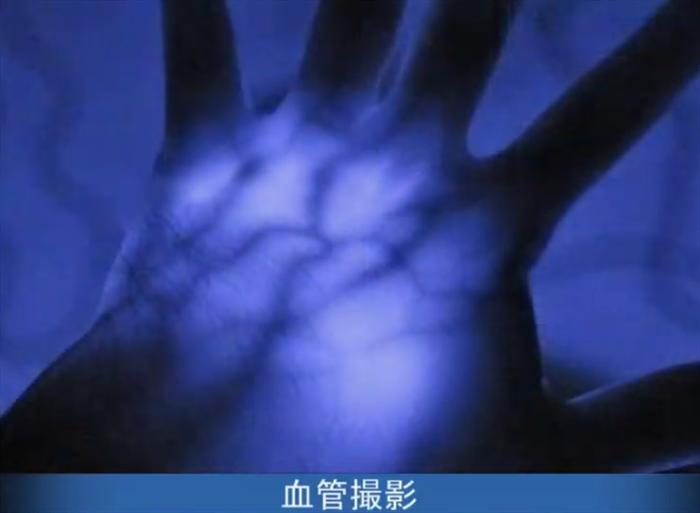 SiOnyx AURORA 血管撮影